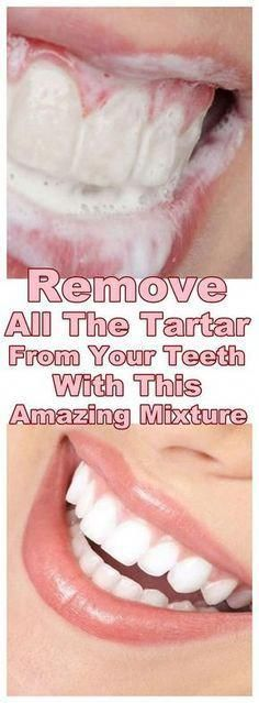 Try This Amazing Mixture And Remove All The Tartar From Your Teeth!#oralhealth#teeth#mixture#remove#tartar#beauty#natural#recipe