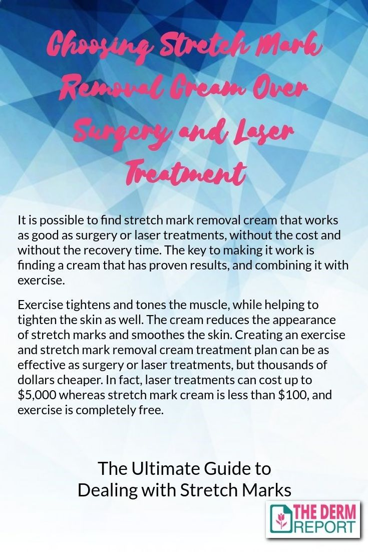 Choosing Stretch Mark Removal Cream over Surgery and Laser