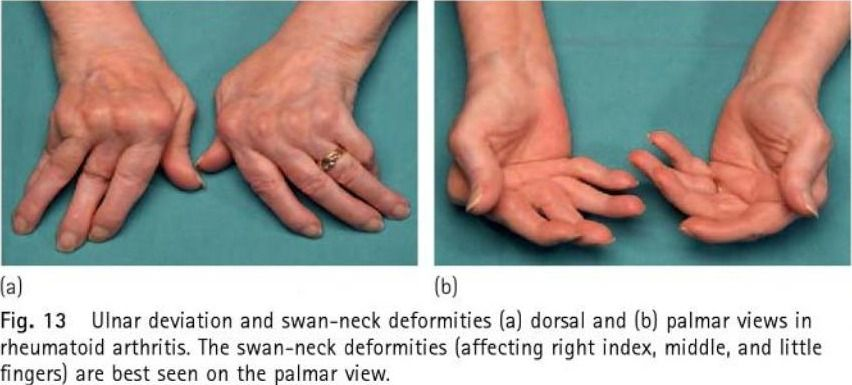 Rheumatoid Arthritis Ulnar Deviation And Swan Neck