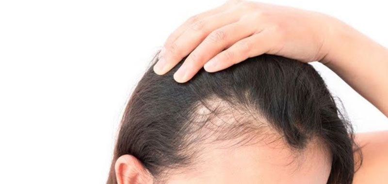 أظهرت دارسة حديث أن علاج الصلع اصبح أقرب بخطوة بعد أن تمكن العلماء من إيقاف تساقط الشعر في الفئران إثر Hair Transplant Hair Scalp Problems Laser Hair Reduction