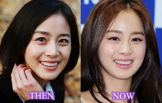 Eyelid Surgery Korean - Starplasticsurgerypictures.com