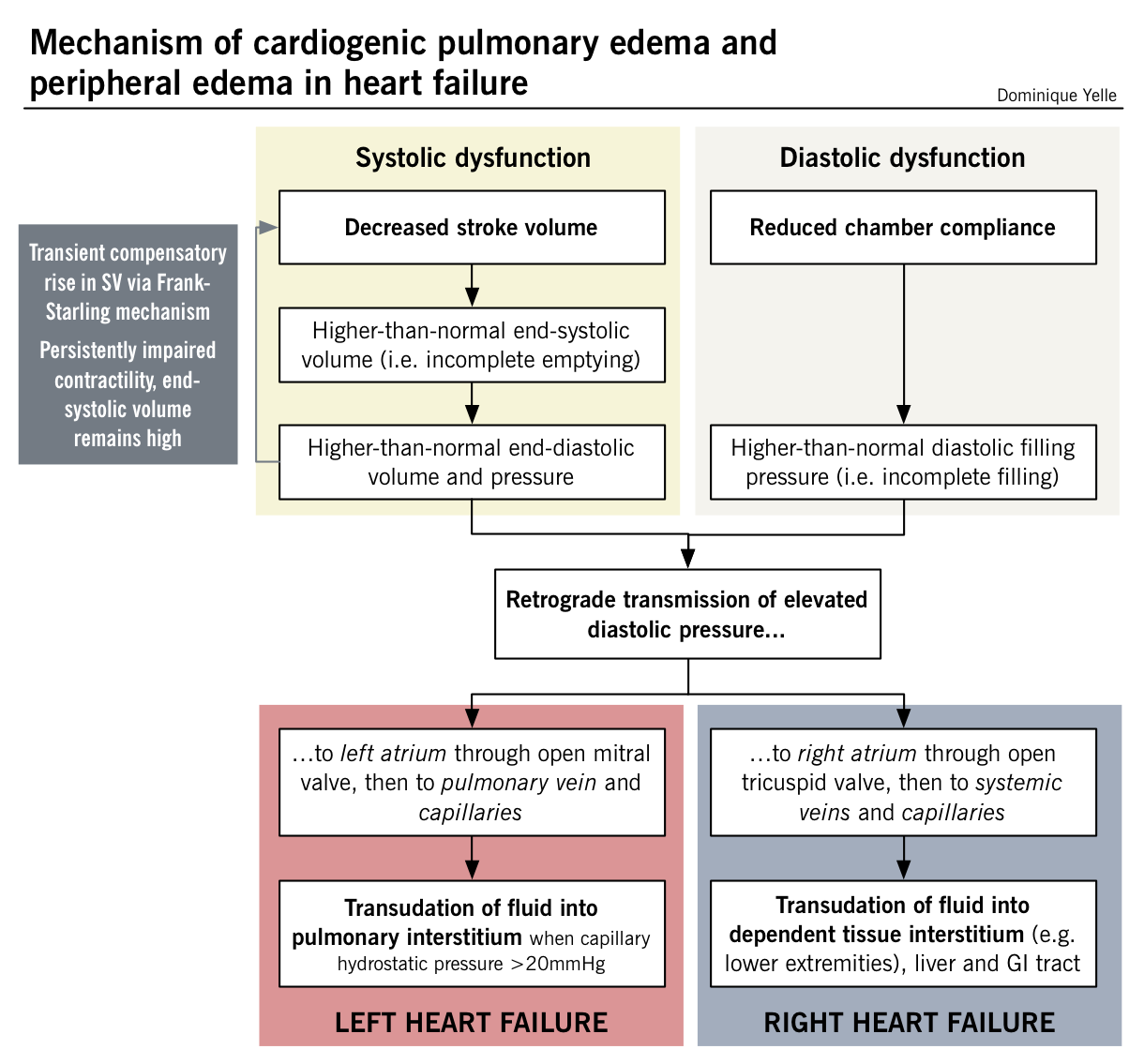 Mechanism Of Cardiogenic Pulmonary Edema And Peripheral Edema In Heart Failure