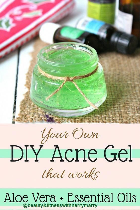 BEST DIY ALOE VERA GEL FOR ACNE TREATMENT-MUST SEE - Beauty & Fitness with Harry... - #beauty #fitne...