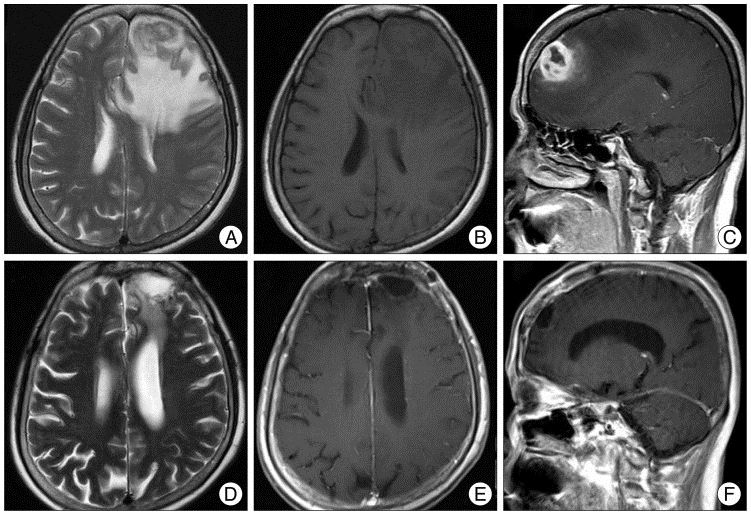 cb720636d13b8083eb71255a6e20ec8c - How Much Does It Cost To Get A Brain Mri