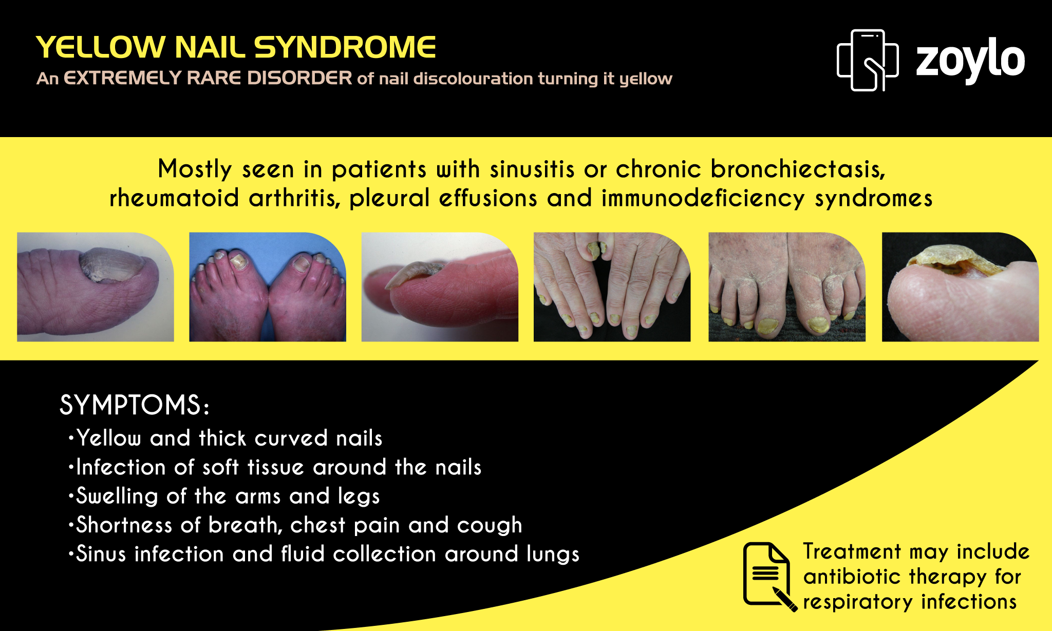 YELLOW NAIL SYNDROME - An EXTREMELY RARE DISORDER of nail ...