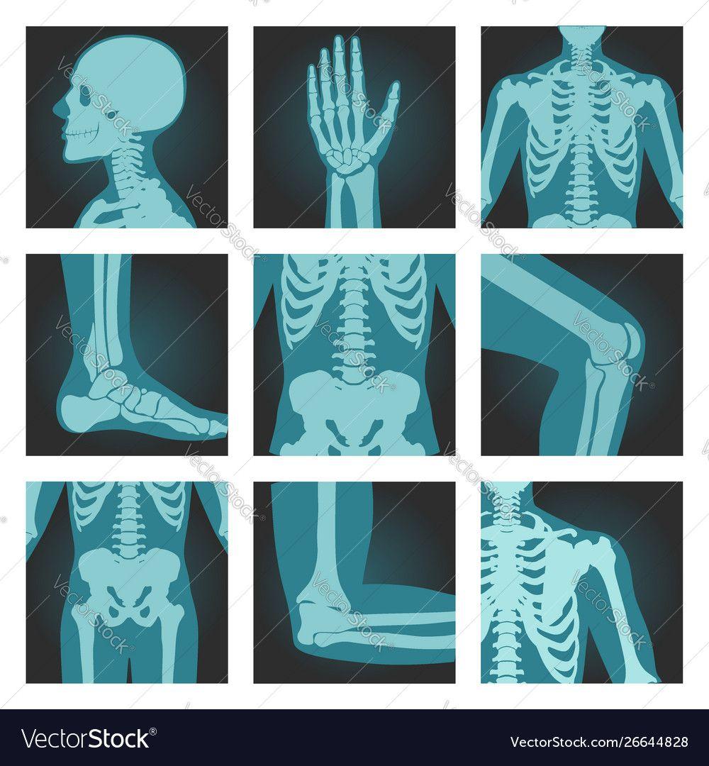 cb79b6fd33eb5342ce85ab33567cbf9d » X-ray Drawing