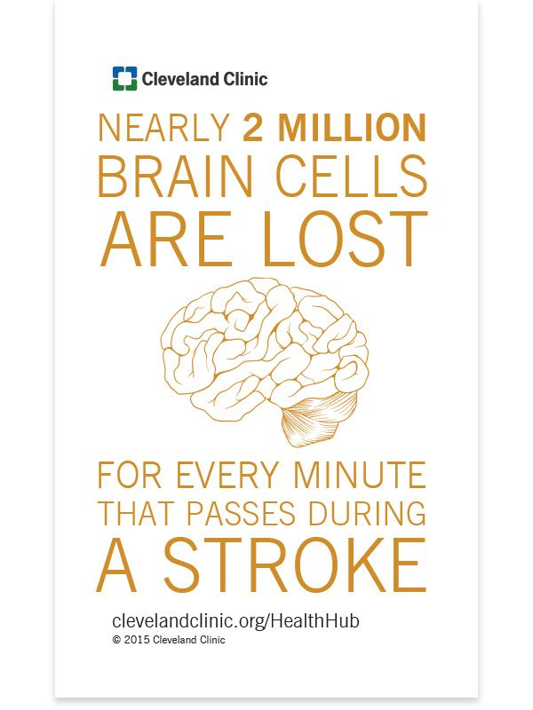 Special ER on Wheels Can Help You Survive a Stroke | Wellness