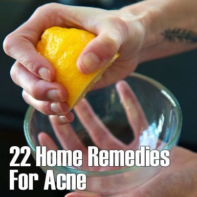 22 Home Remedies For Acne ▻▻ http://herbs-info.com