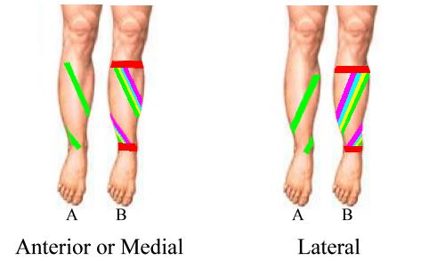 Shin Splints Taping Shin Splints Taping Shin Splints Shin Splint Exercises
