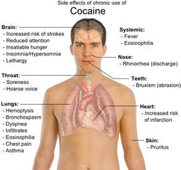 efeitos colaterais da cocaína