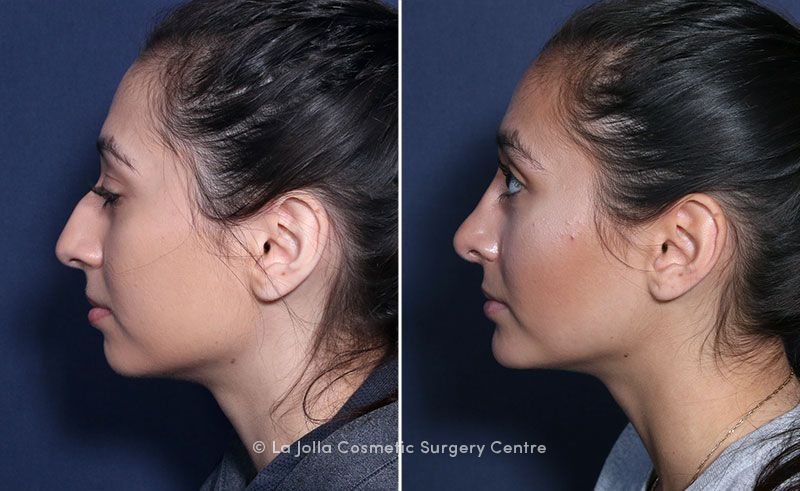 Chin Implant Rhinoplasty 10594c Brahme Rhinoplasty Nose Plastic Surgery Chin Implant