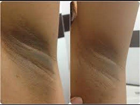 Black Skin Care Advice How To Lighten The Underarms Black Skin Care Dark Patches On Skin Dark Armpits