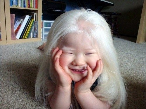 Pin By Jalissa Wadel On Albinos Albino Girl Albinism Albino Human