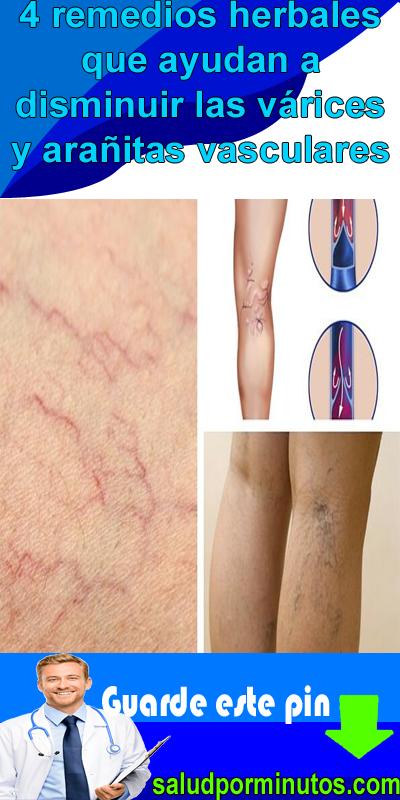Arañas vasculares remedios para y varices