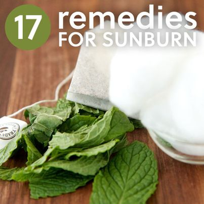 17 Home Remedies For Sunburn ~ this is an awesome page full of tips and instructions, click the picture to learn more ~ even to learn how to make YOUR own Sunscreen using 'natural' ingredients ~ YES!