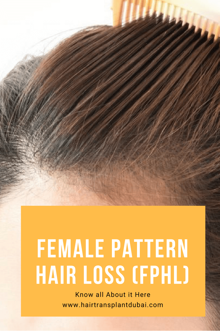 Hair Loss In Women Is Becoming Common As It Is In Men Recent