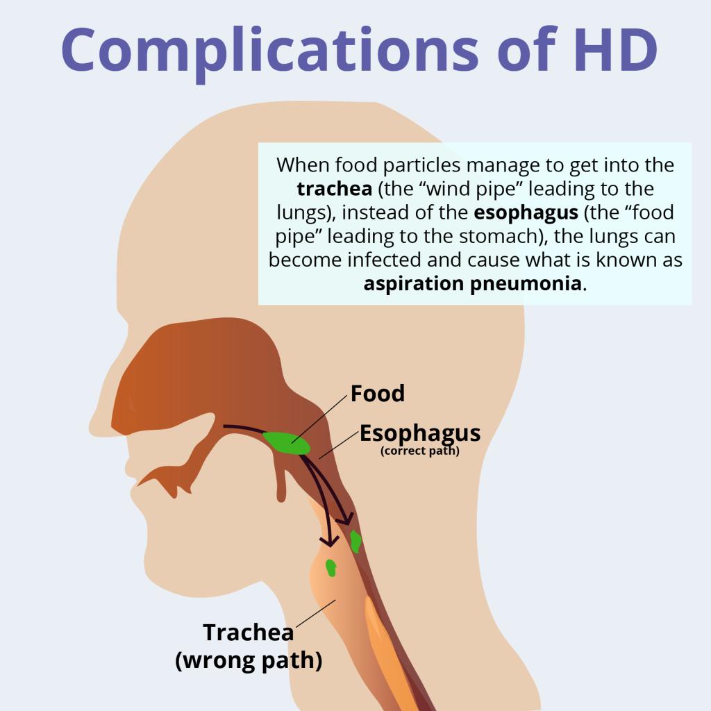 Complications of Huntington\'s Disease | Work | Pinterest ...