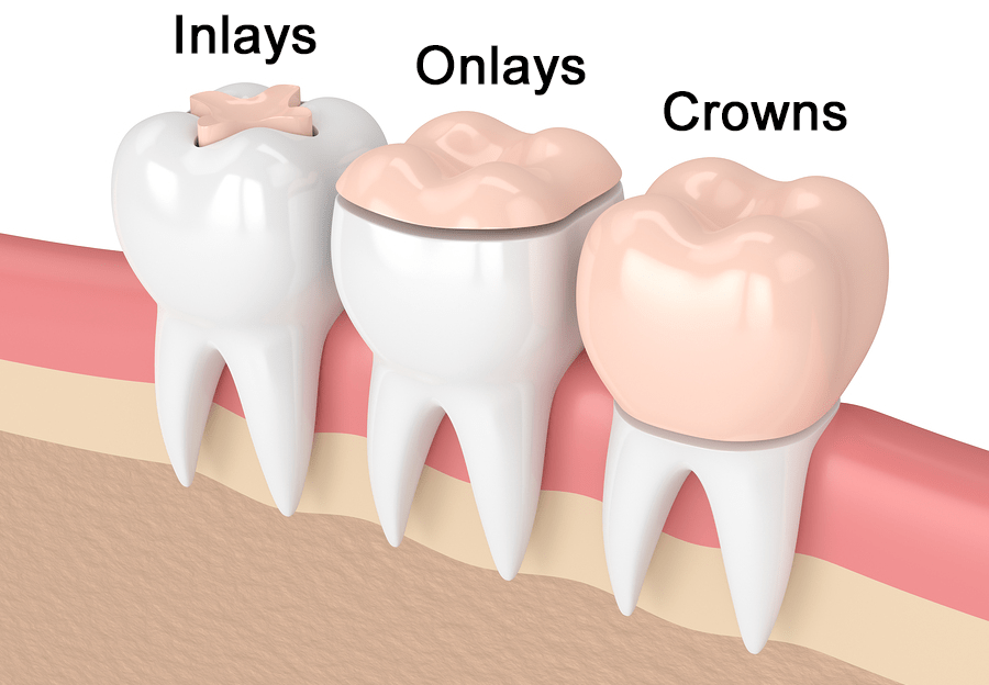 What's a dental inlay? #dentalassistant