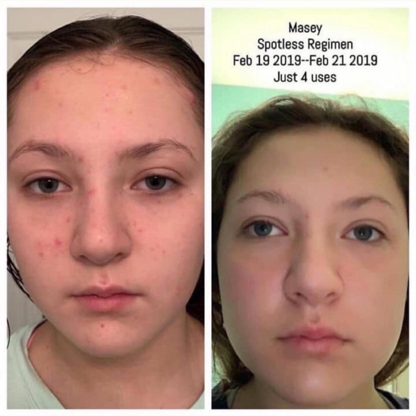 Our Children There S Nothing More Precious If Yours Or Someone You Know Are Dealing W Essential Oils For Face Antiaging Mask Antiaging Essential Oils