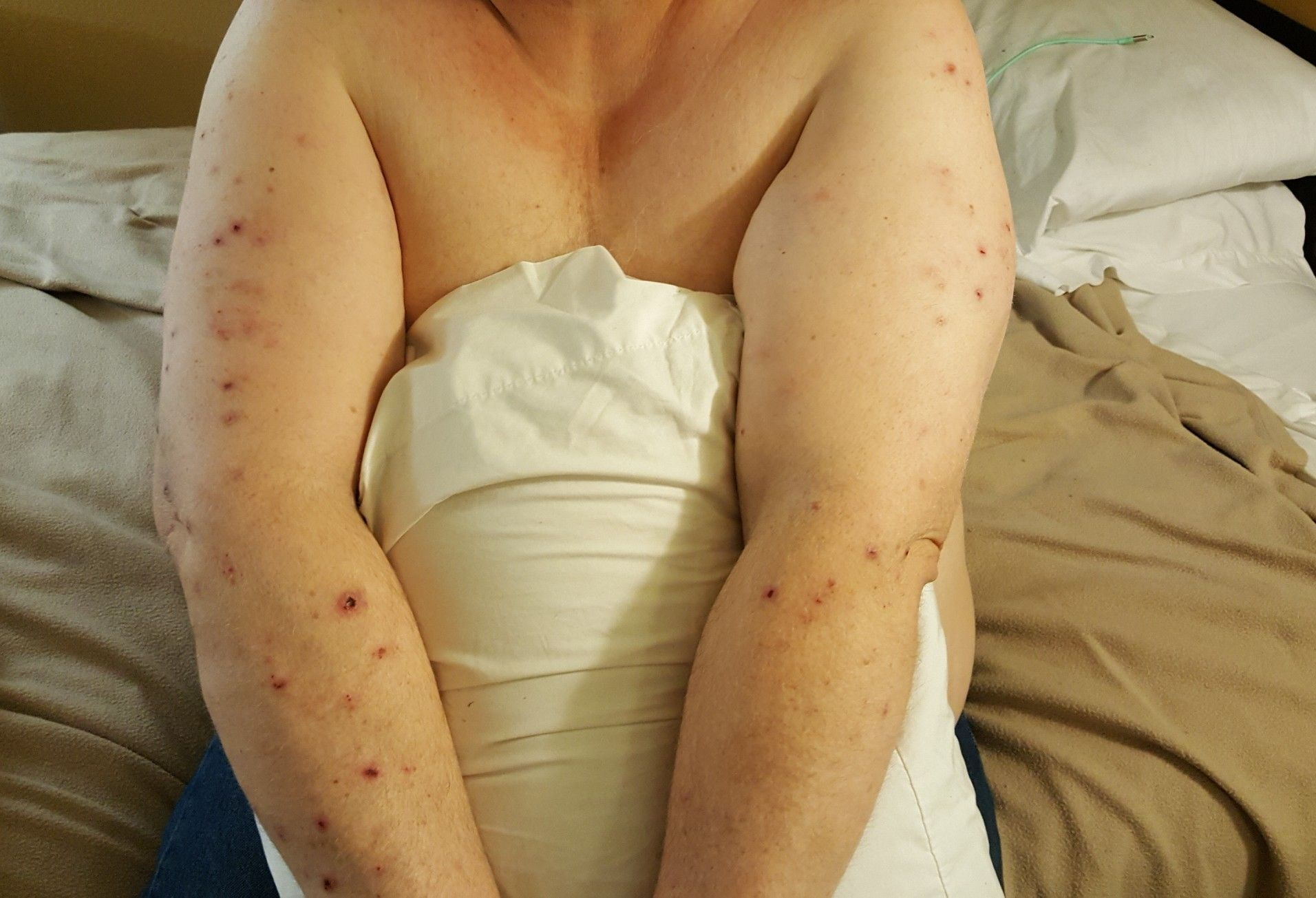 The result of about 7 weeks of bed bug bites. Bed bug