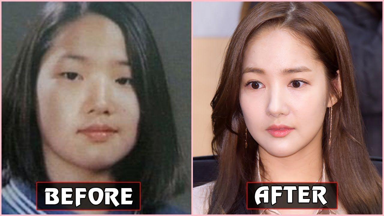 Korean Stars Plastic Surgery Cosmetic Surgery Plastic Surgery Quotes