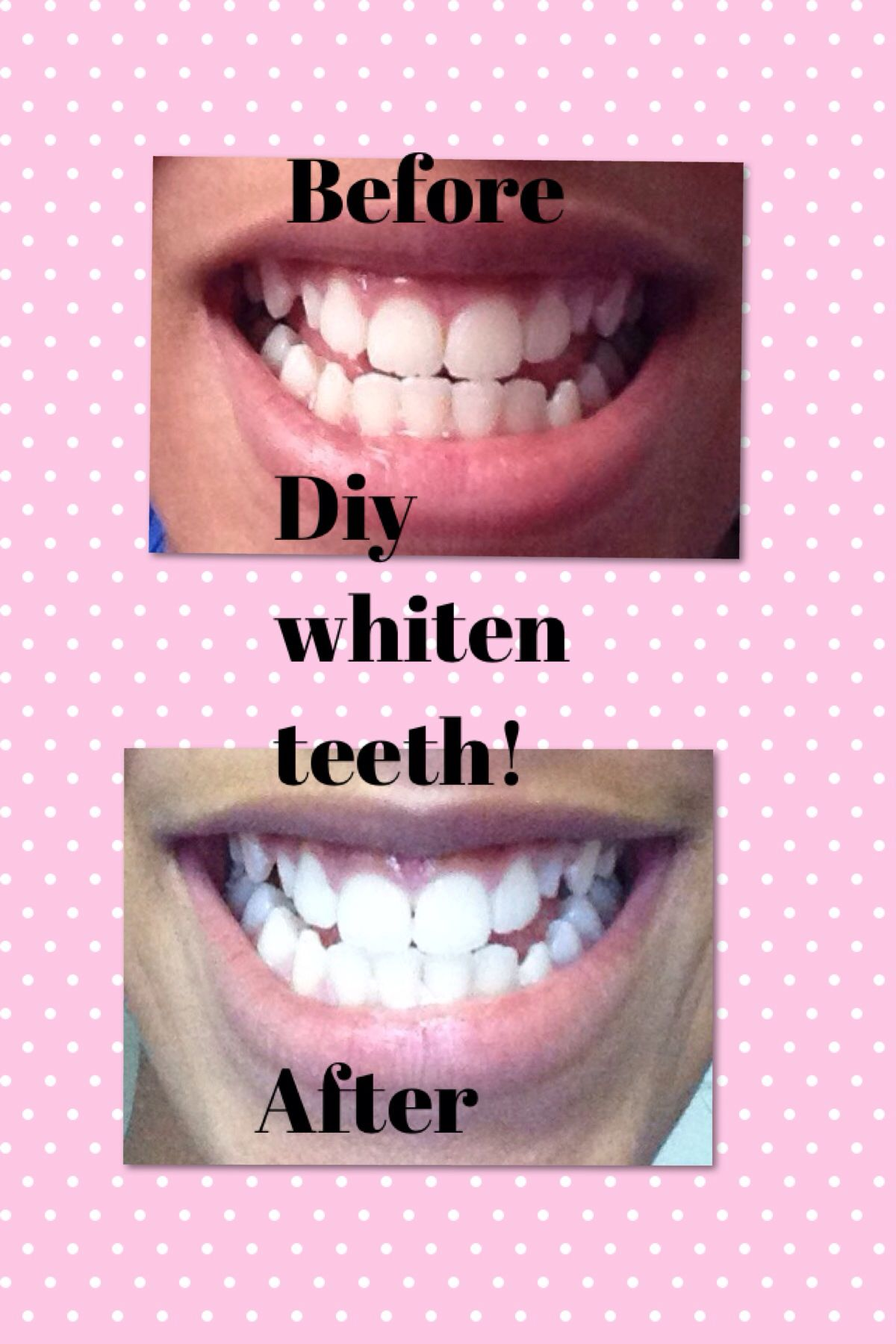 Lemon Just And Salt Can Work Magic On Your Teeth How To Whiten