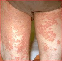 Rashes Caused By Mold