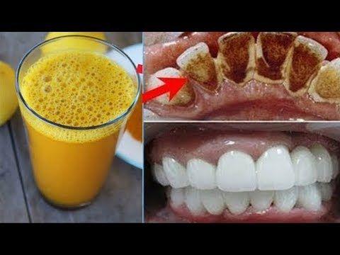 2 Dakika İçinde Sarı Dişlere Çözüm - İnci Gibi Beyaz Dişlere Nasıl Sahip Olunur ? - Güzellik Bakım #howtowhitenyourteeth