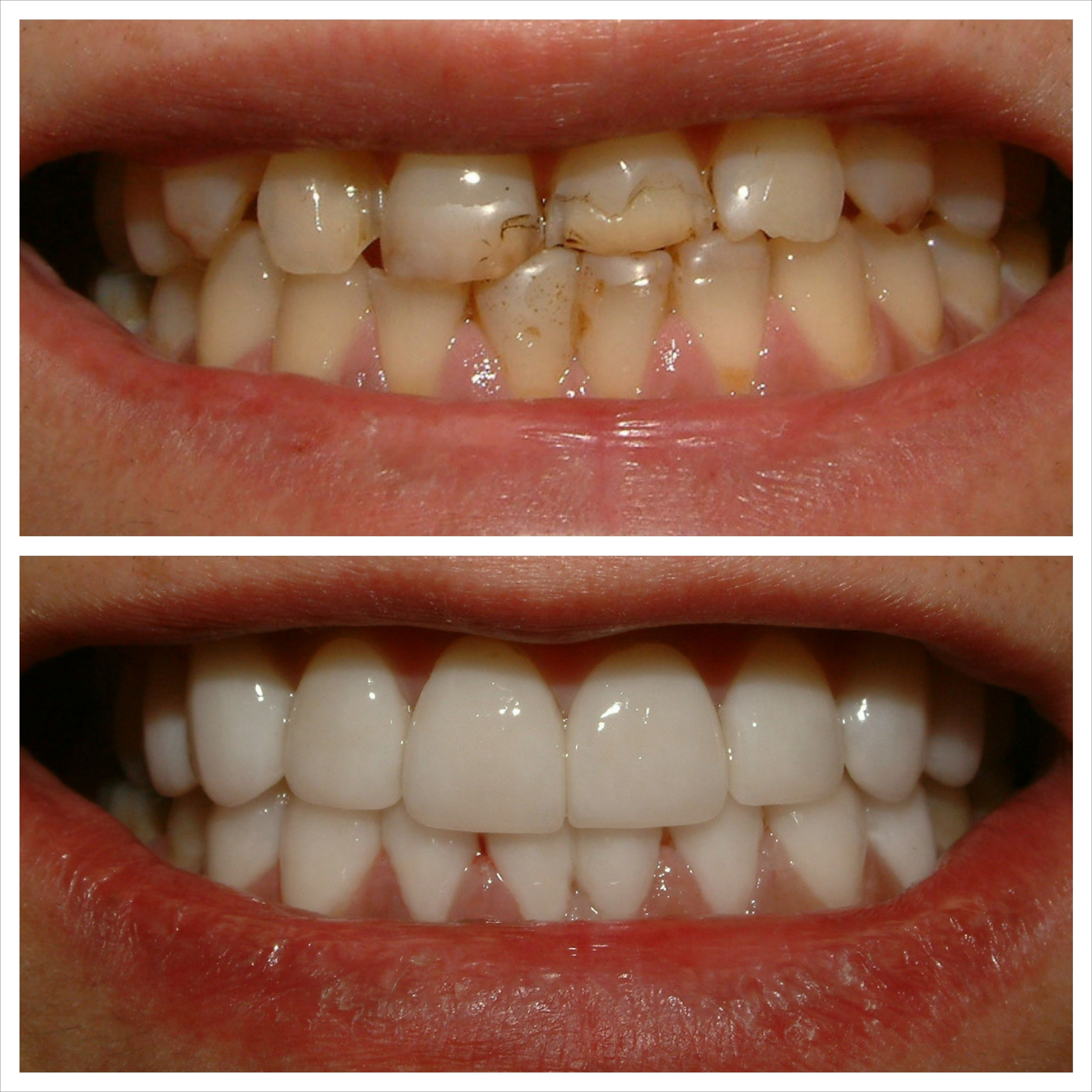 Take A Look At This Before After Invisalign And Veneers Call To Schedule Your Complimentary Consultation 416 800 4399 Dr Jeremy Kurtz Dds Www Invisi