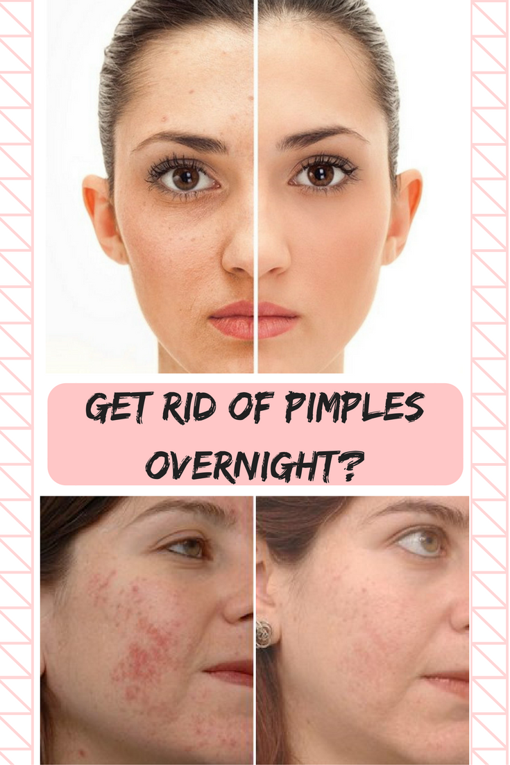 How To Get Rid Of Pimples Instantly Get Rid Of Pimples Overnight Pimples Overnight How To Get Rid Of Pimples Redness Pimple