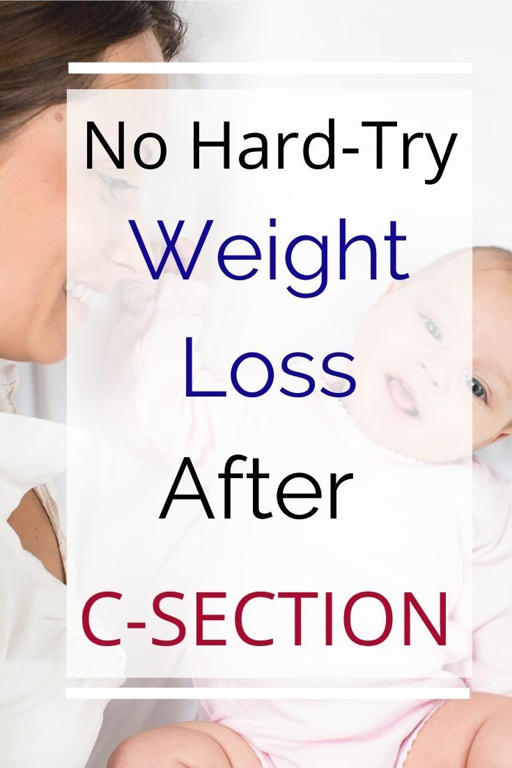 Photo of No Hard Try Weight Loss After C-Section