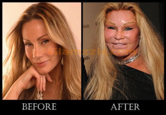 Jennifer Grey Nose Job Bad