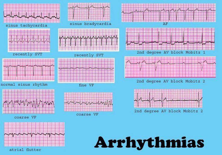 Dysrhythmia cheat sheet cardiac dysrrhythmia aka arrhythmia and irregular heartbeat also rh pinterest