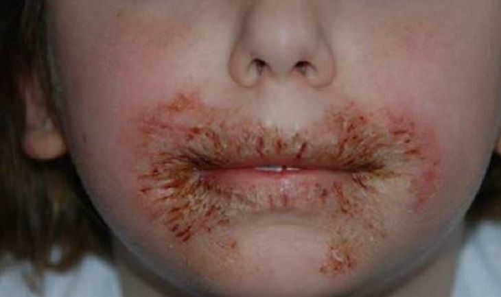 Itchy Rash Mouth