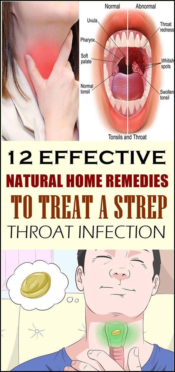 Steroid pack for strep throat het gezicht van organon