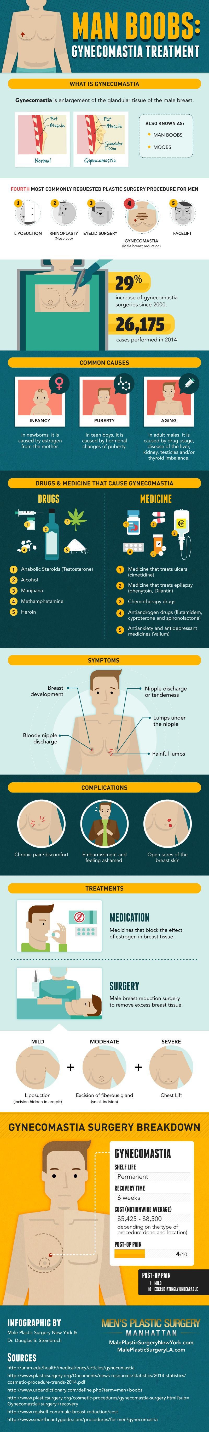 Man Boobs: Gynecomastia Treatments