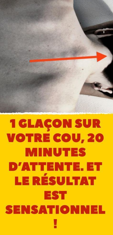 1 glaçon sur votre cou, 20 minutes d'attente. Et le