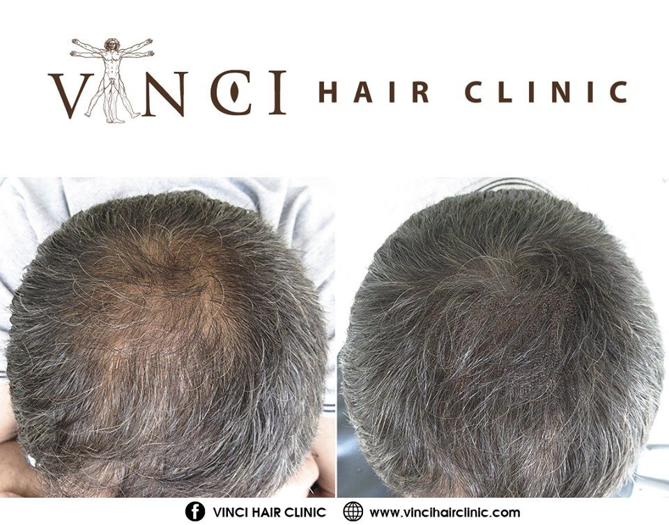 Long Hair Micro Scalp Pigmentation Msp Hair Clinic Micro Scalp Pigmentation Hair Loss Men