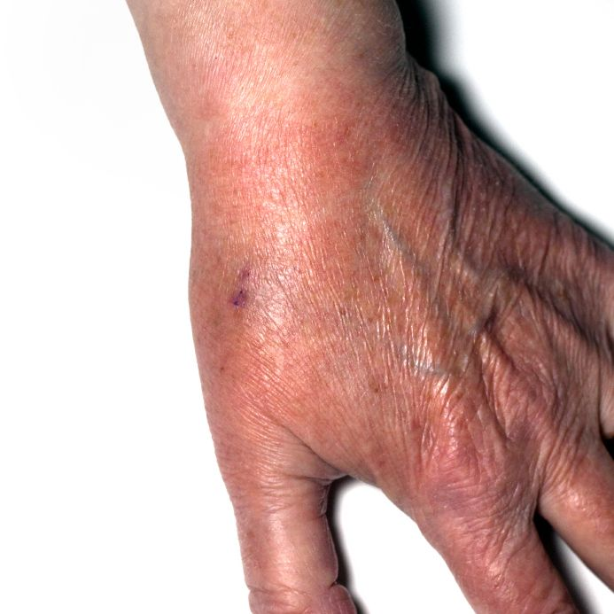Skin Problems May Be The First Sign You Have Diabetes Or They