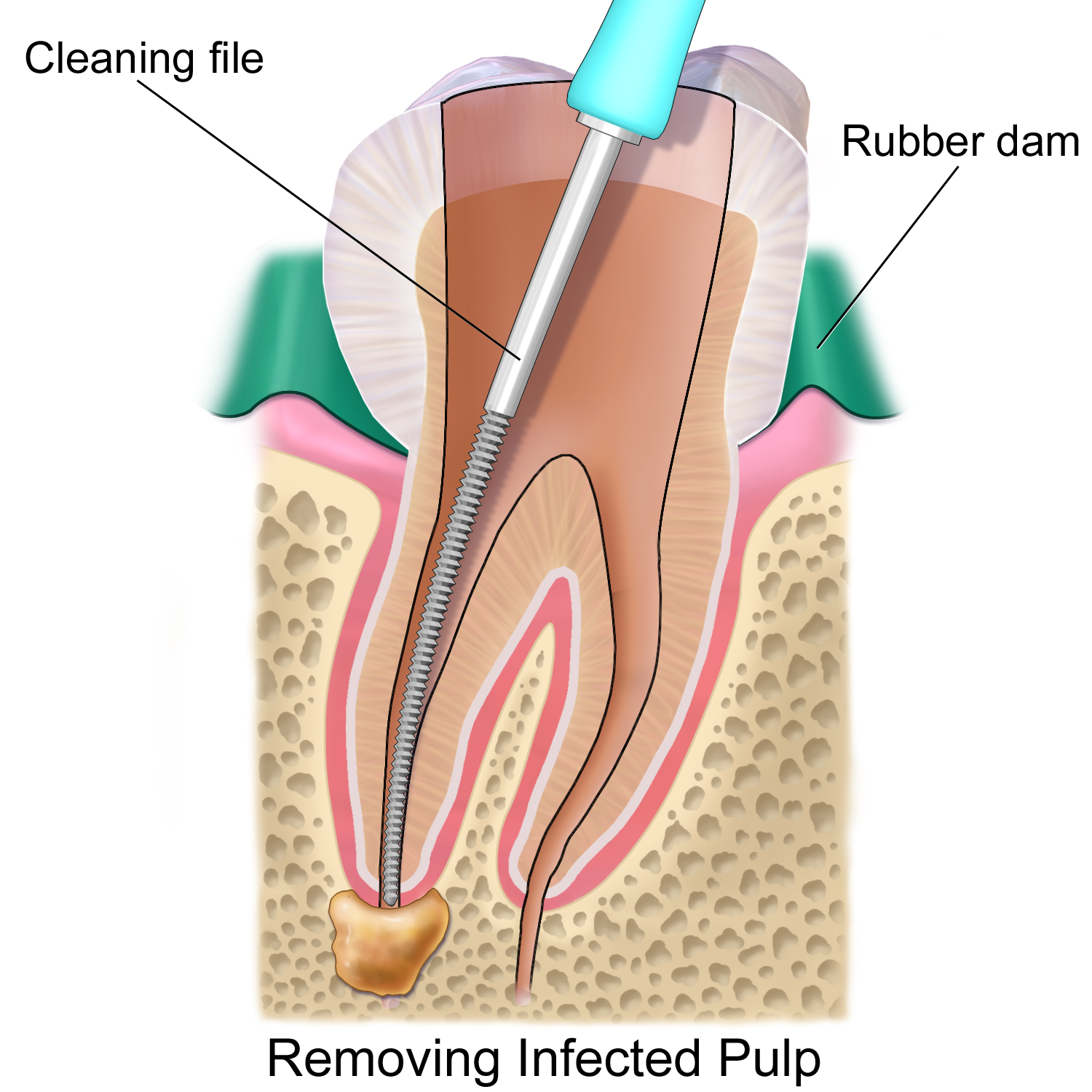 Dental Implants Clinic In Delhi India: Preventing Infectious ...
