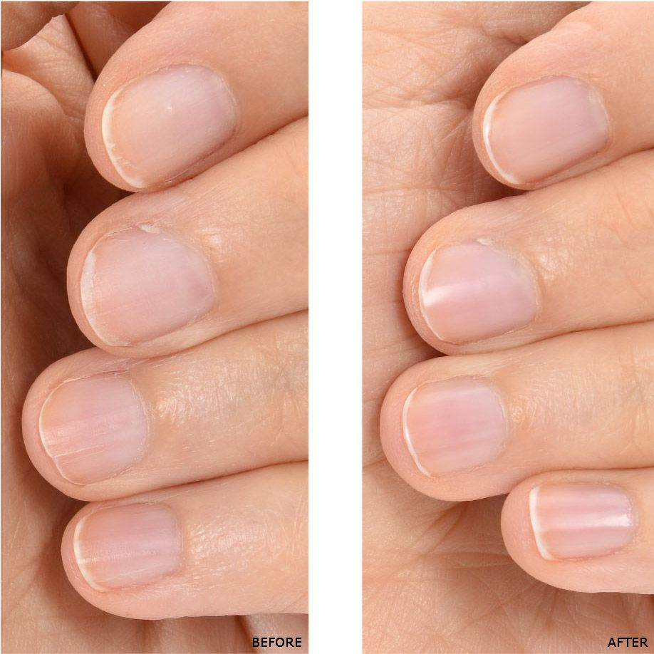 The Naked Manicure: Men\'s Nails Before and After | The Naked ...