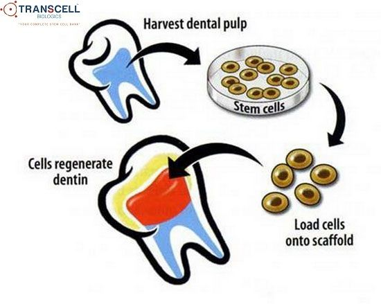 Cord Blood Banking Cost >> Teeth/dental pulp is a rich source of Mesenchymal stem ...