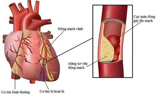 Hẹp mạch vành có làm người mệt mỏi không?