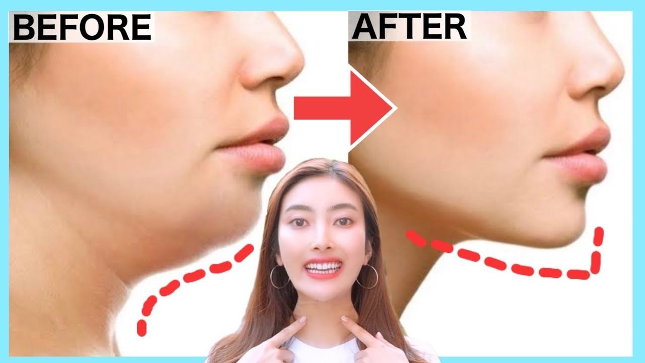 Double Chin Removal and Wrinkles, Get a Better Jawline, V shape Face with this Exercise! - YouTube