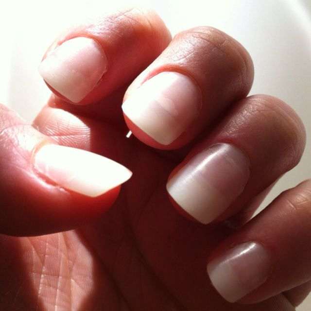 Acrylic nails done at home with the kit from KISS ...