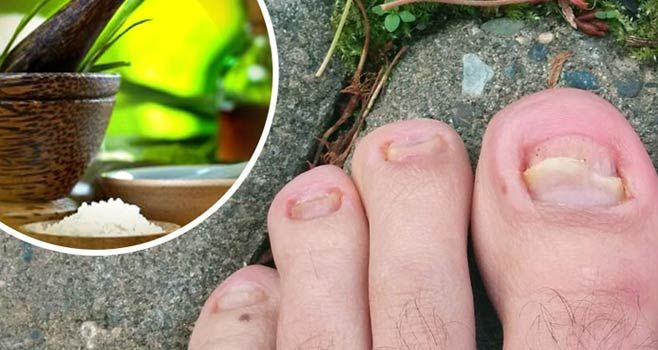 Ayurvedic Treatment For Toenail Fungus Health Pinterest