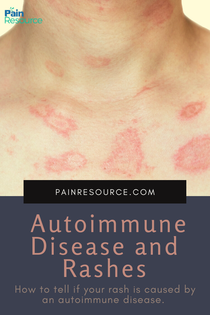 Chronic Conditions What Is Autoimmune Disease Rash In 2020
