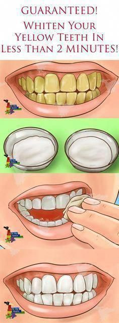 better-than-the-dentist-4-steps-to-whiten-yellow-teeth-and-remove-plaque-and-tar…