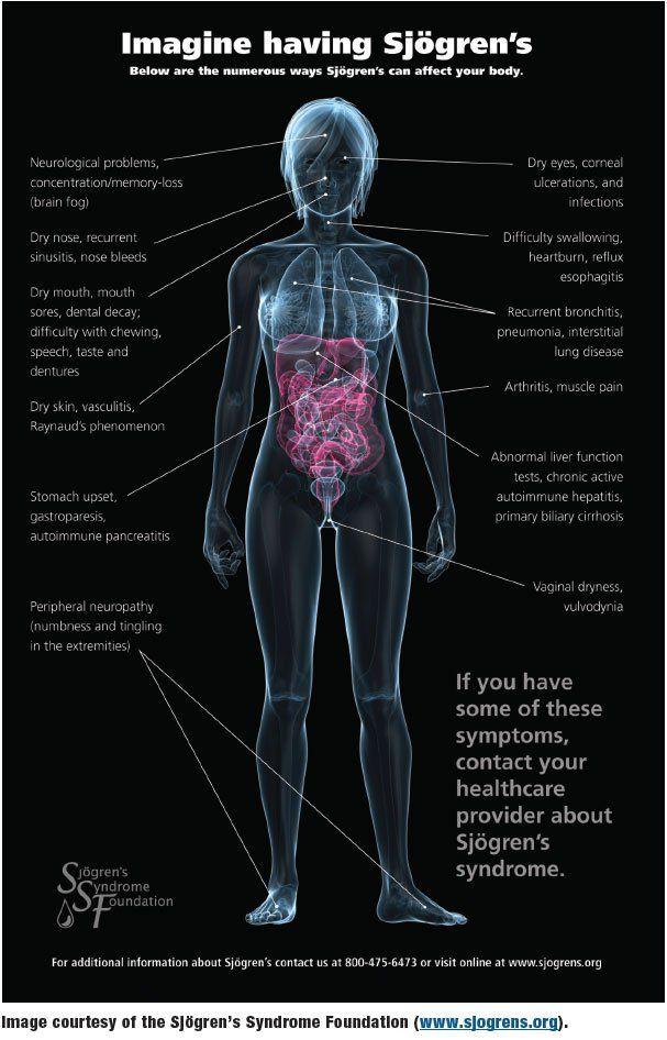 fibromyalgi test online
