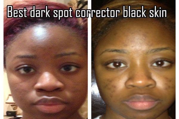 Best Dark Spot Corrector Black Skin Dark Spot Correctors Skin Care Dark Spots Best Dark Spot Corrector Black Skin Care Dark Spots